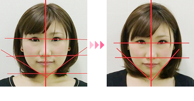 顔 の 歪み 矯正